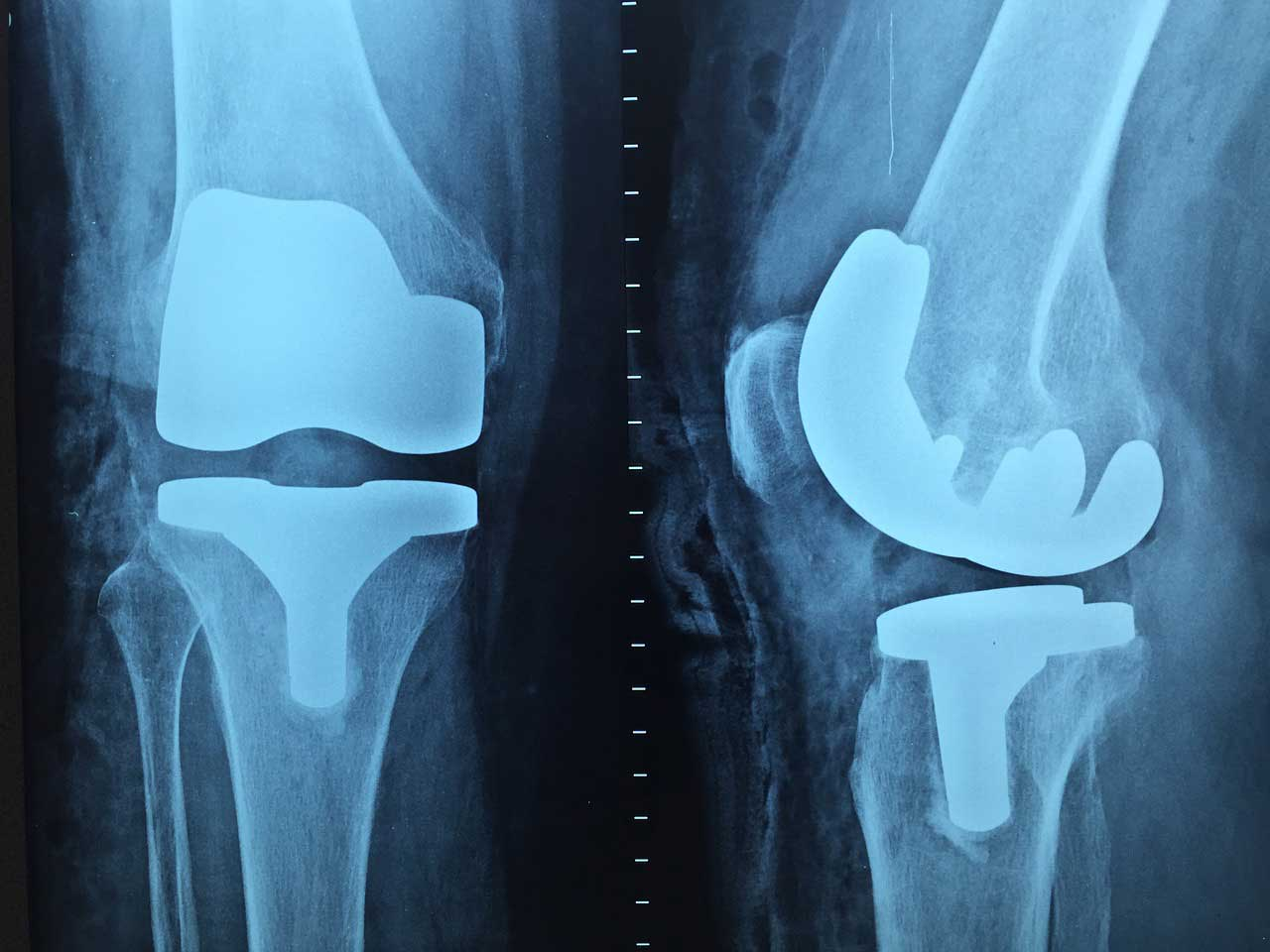 Photo of Knie knirscht- Knorpelschaden im Kniegelenk